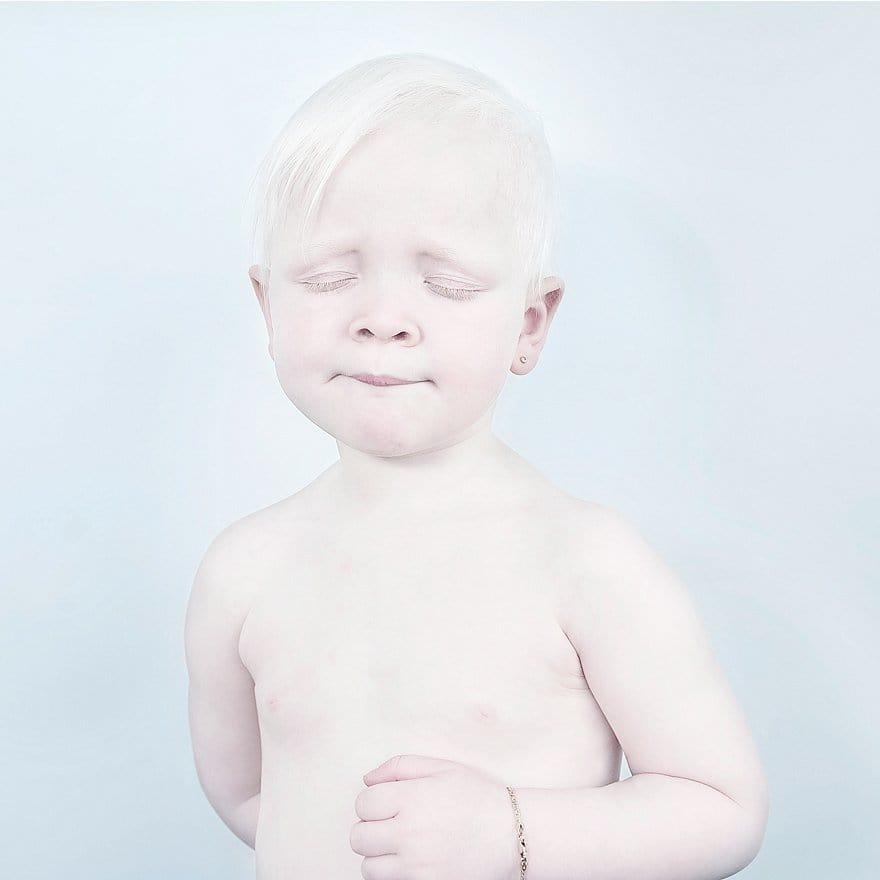 Albino Boy