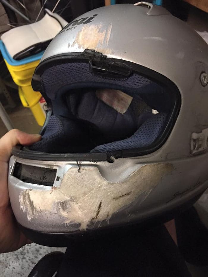 This Is Why You Wear A Full Helmet. My Friend Was Hit By Someone Who Ran A Red Light. If He Had Wore A Skull Cap, He