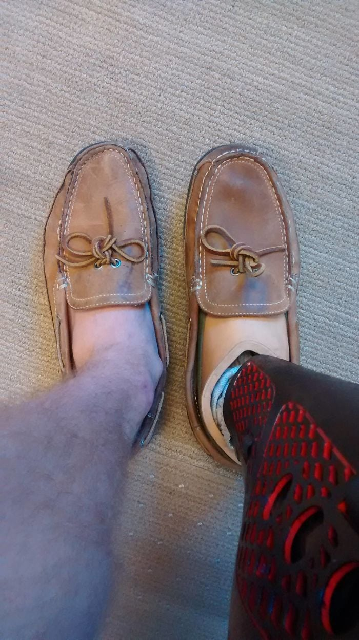 The Difference In Shoe Wear Between My Regular Foot And My Prosthetic Foot After A Year