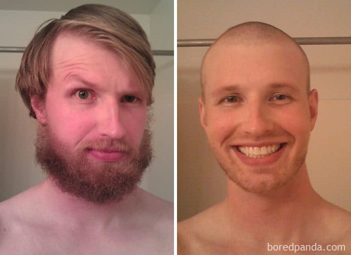 Hair-B-Gone