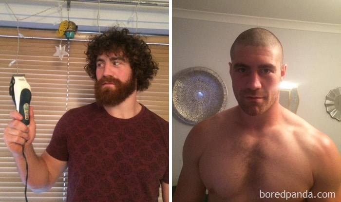 Kyle Amor Shaved His Head And Face To Raise Money