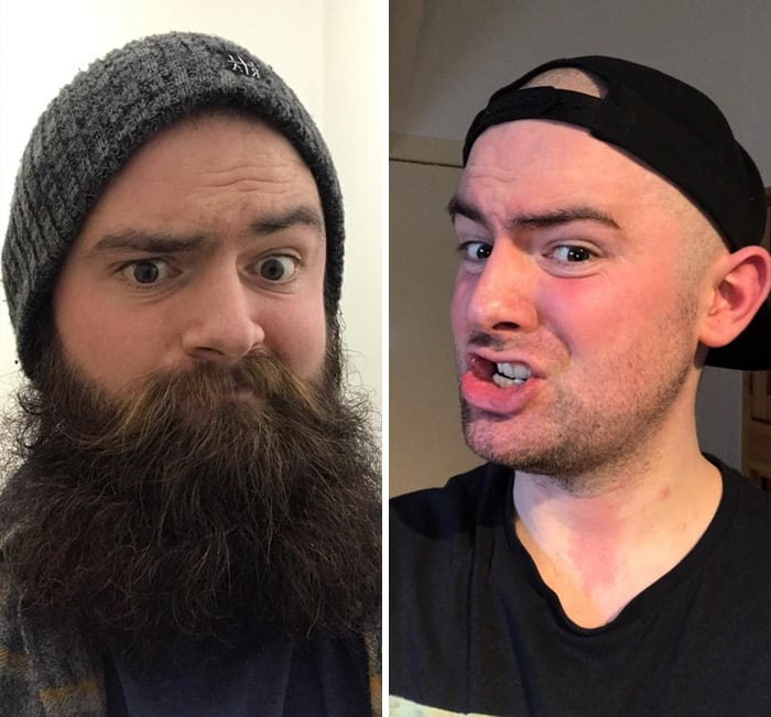 Shaved My Beard, Feeling Incredibly Naked, Self Conscious And Full Of Regret