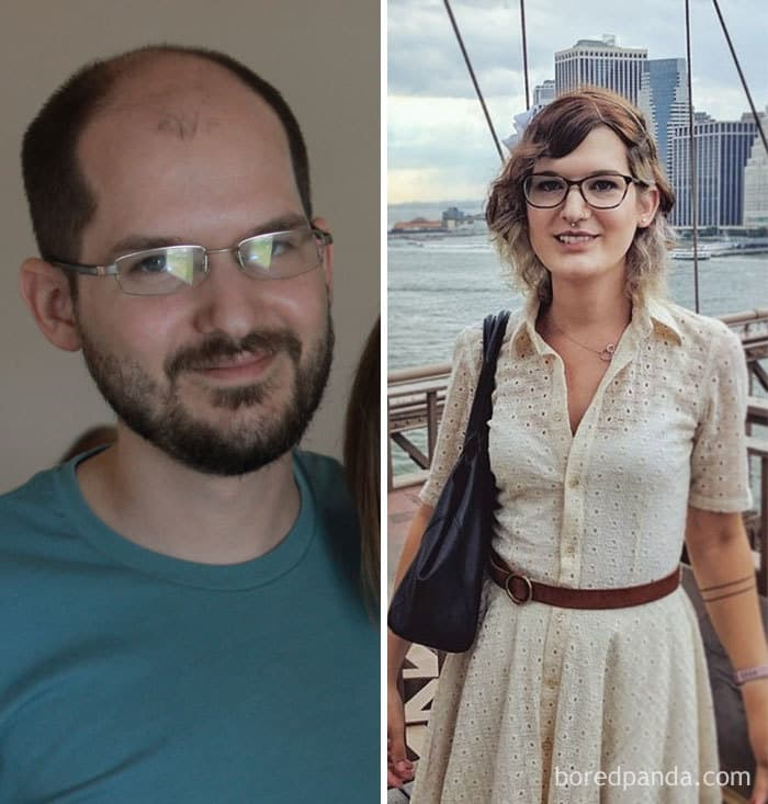 30-Year-Old Male To Female, 9 Months On HRT