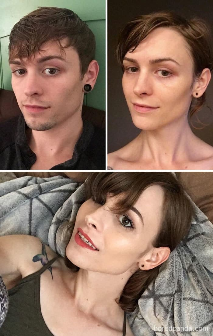 27-Year-Old Male To Female, 16 Months On HRT