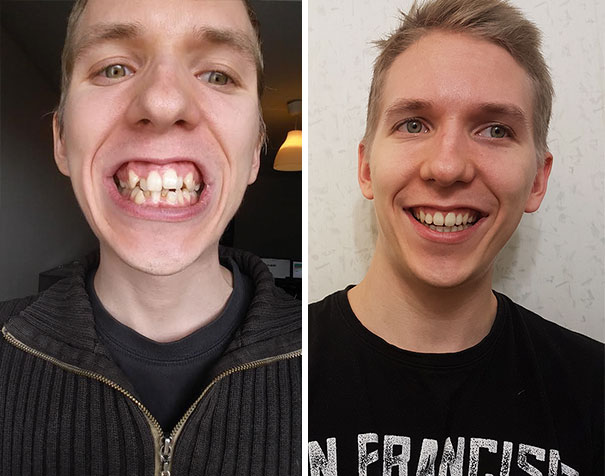 After Almost Two Years, I Just Got My Braces Off