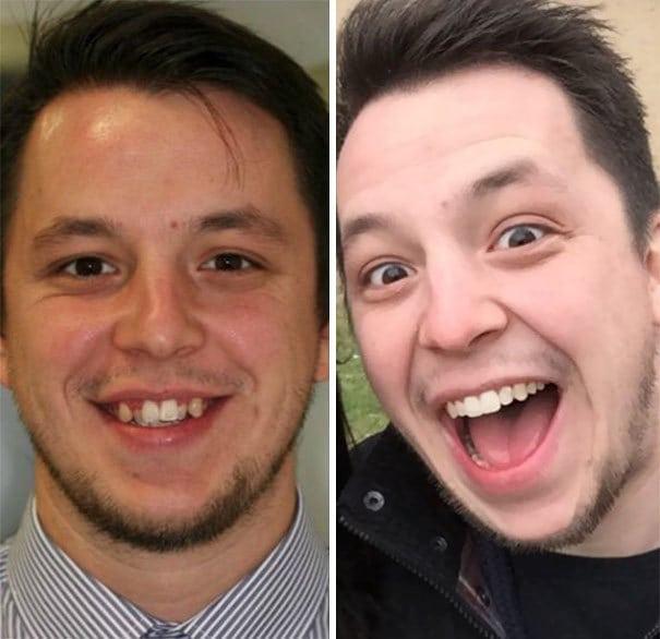 Amazing Transformation