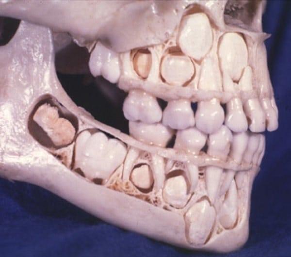 В случае, если вы когда-нибудь задавались вопросом, вот что череп молодого человека выглядит со всеми молочными зубами остаются нетронутыми.