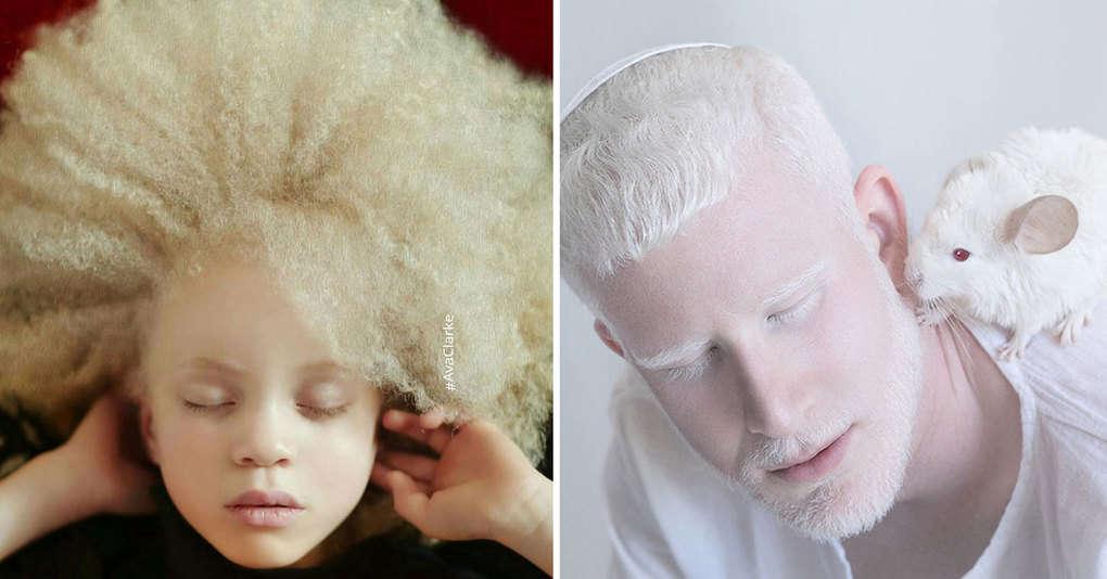 15 фотографий людей-альбиносов, которые заворожат вас своей потусторонней красотой