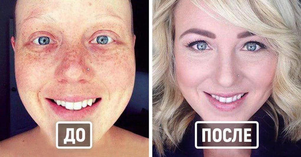 25 настоящих героев, которые выиграли схватку с раком, и теперь здоровы и счастливы