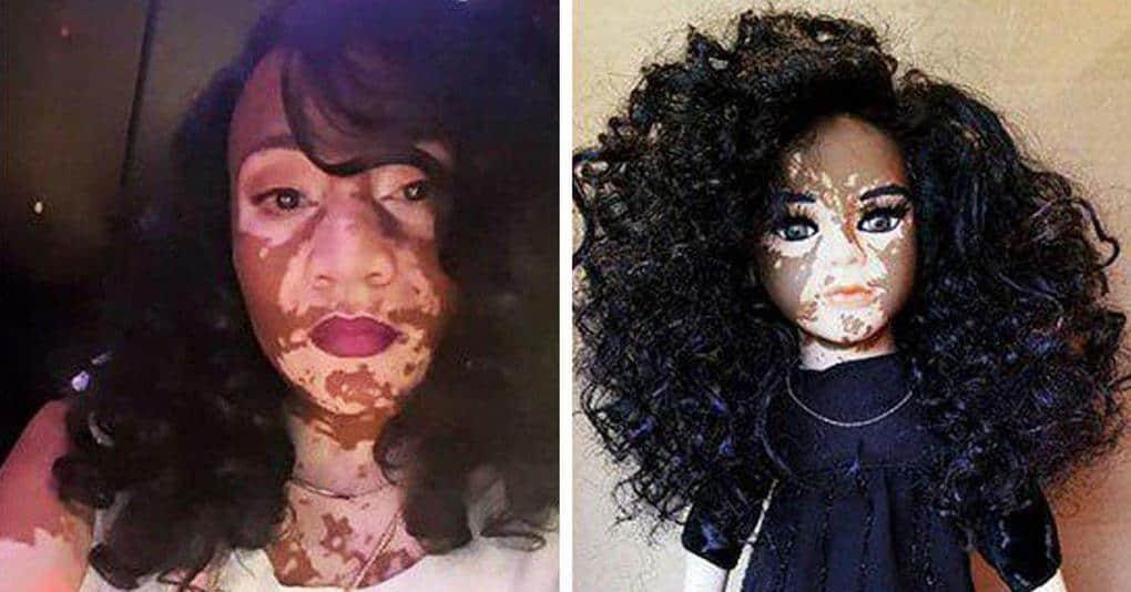 Художник создал особую серию кукол в поддержку людей с витилиго, и они выглядят просто прекрасно