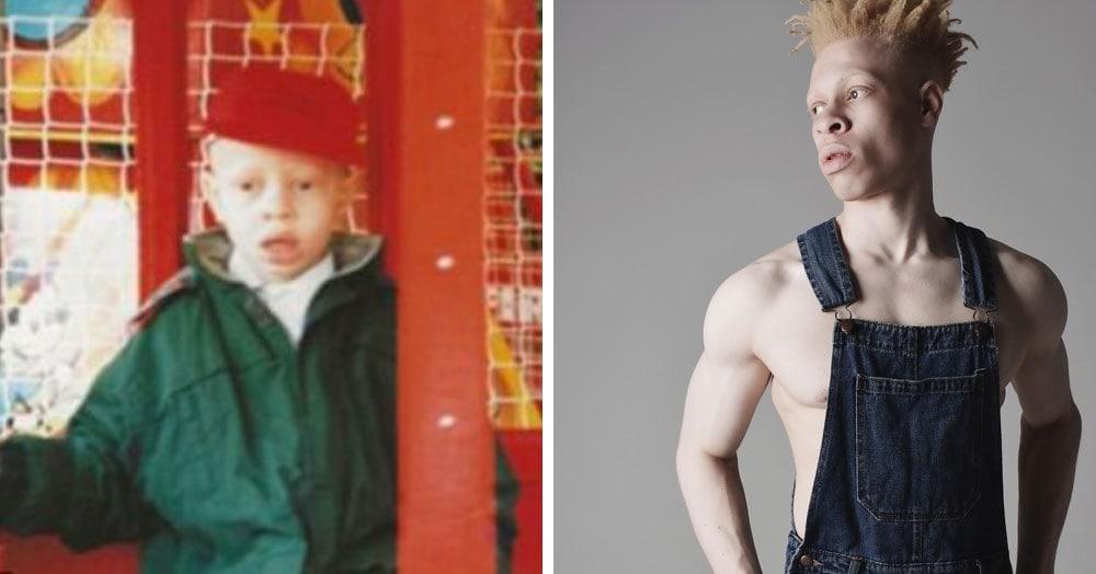 Этот парень-альбинос проделал долгий путь от «гадкого утёнка» до востребованной модели. И совсем неудивительно, что он добился успеха