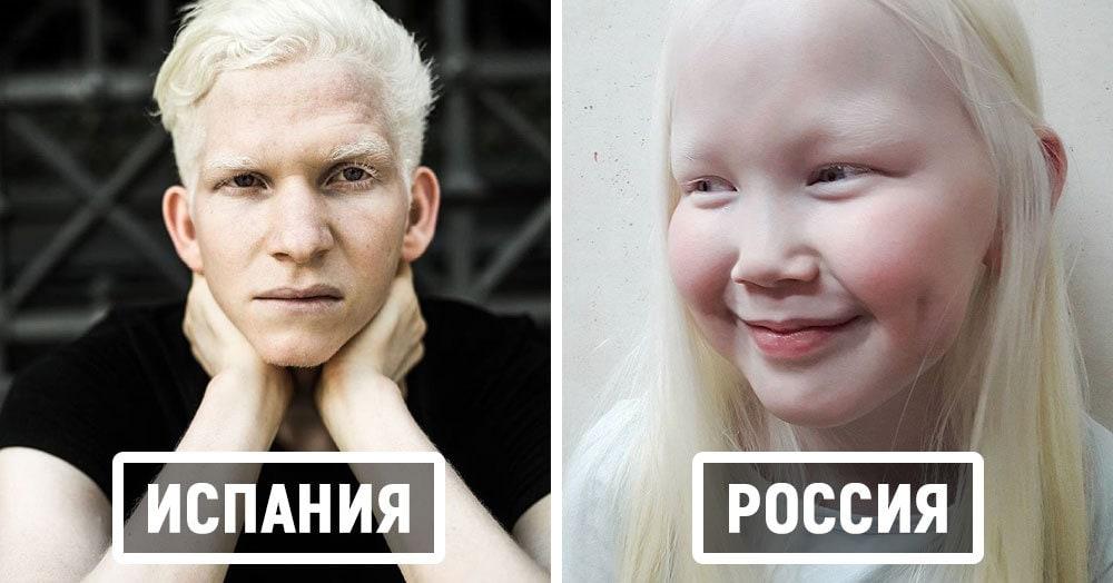 Эти удивительные фотографии людей-альбиносов из разных стран покажут, что у красоты действительно нет границ