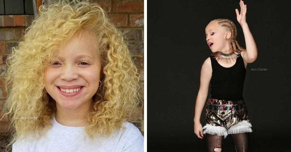 Врачи прогнозировали этой 9-летней девочке слепоту, но вместо того, чтобы отчаиваться, она взяла и покорила мир моды своей необычной внешностью
