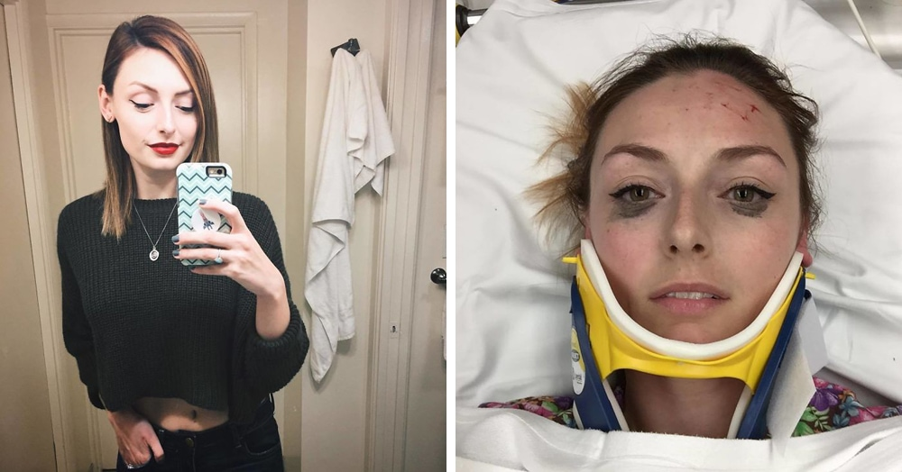 Девушка опубликовала фото после автомобильной аварии. Но внимание всех привлекли вовсе не царапины