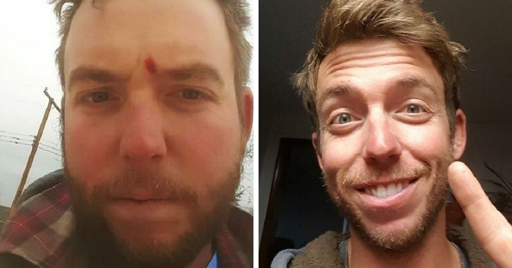 Эти люди бросили пить и позже решили сравнить свои фотографии, сделанные до и после. Разница налицо!
