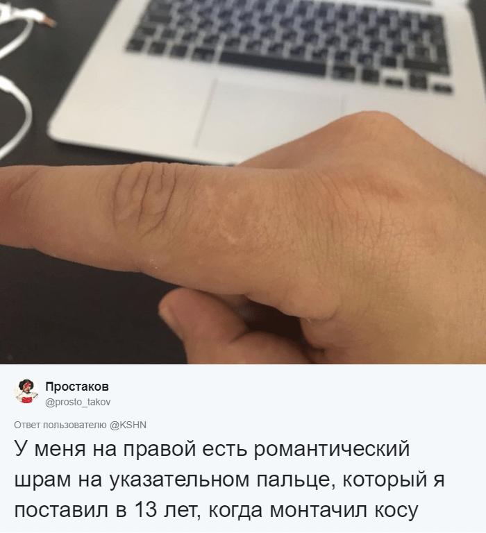 Флешмоб из Твиттера: люди вдруг осознали, что у них всех есть шрам на указательном пальце