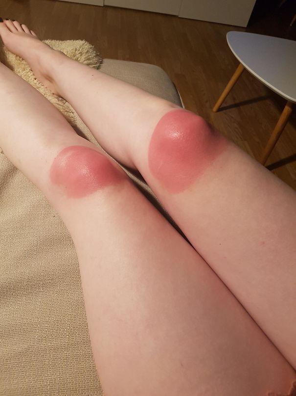 Вот почему вы не должны носить джинсы с отверстиями в солнечные дни