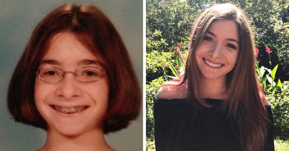 Пользователи сети выложили свои подростковые фото и показали, как можно измениться всего за несколько лет