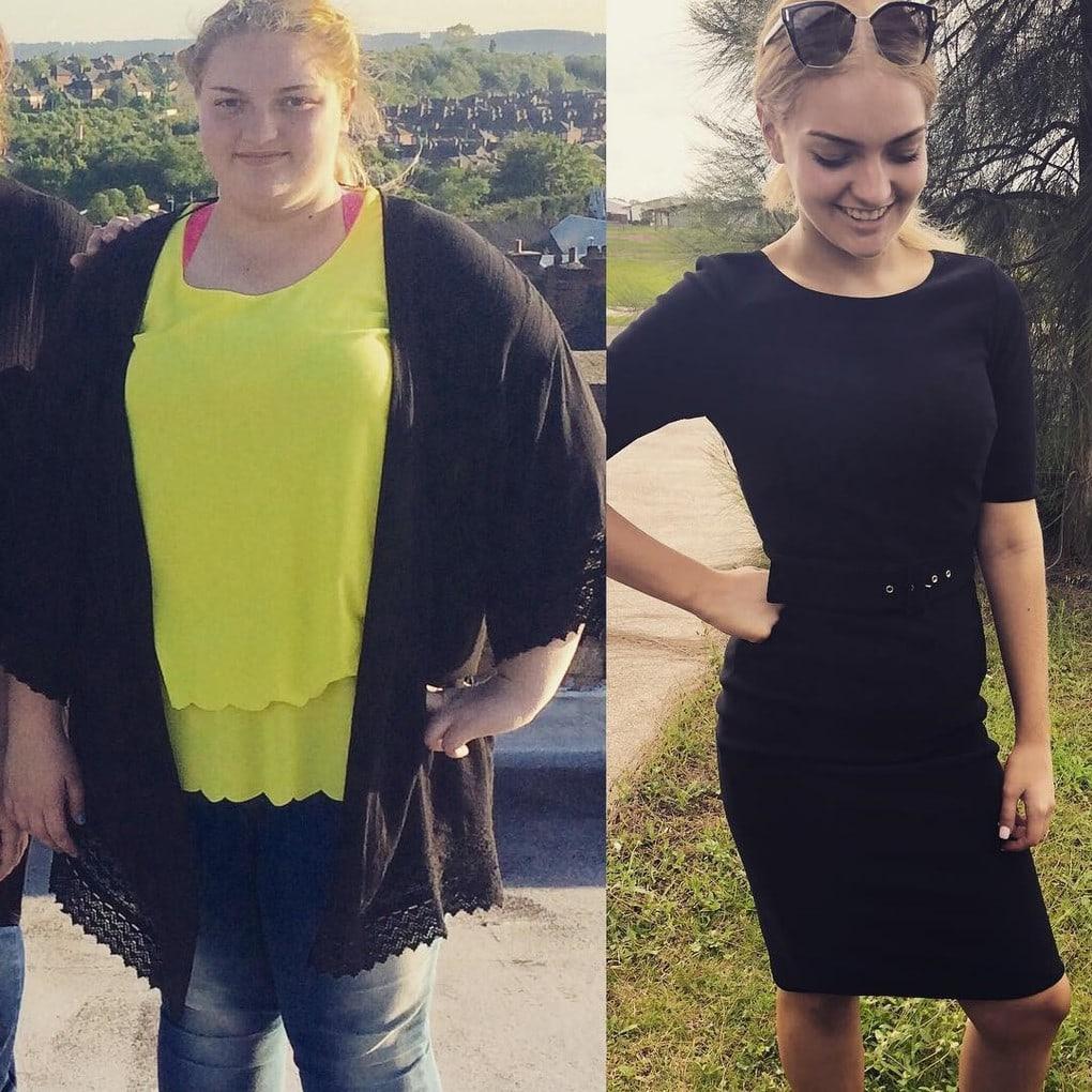 Этой юной леди из Австралии удалось похудеть на 64 кг. Всё из-за желания надеть шикарное выпускное платье 3