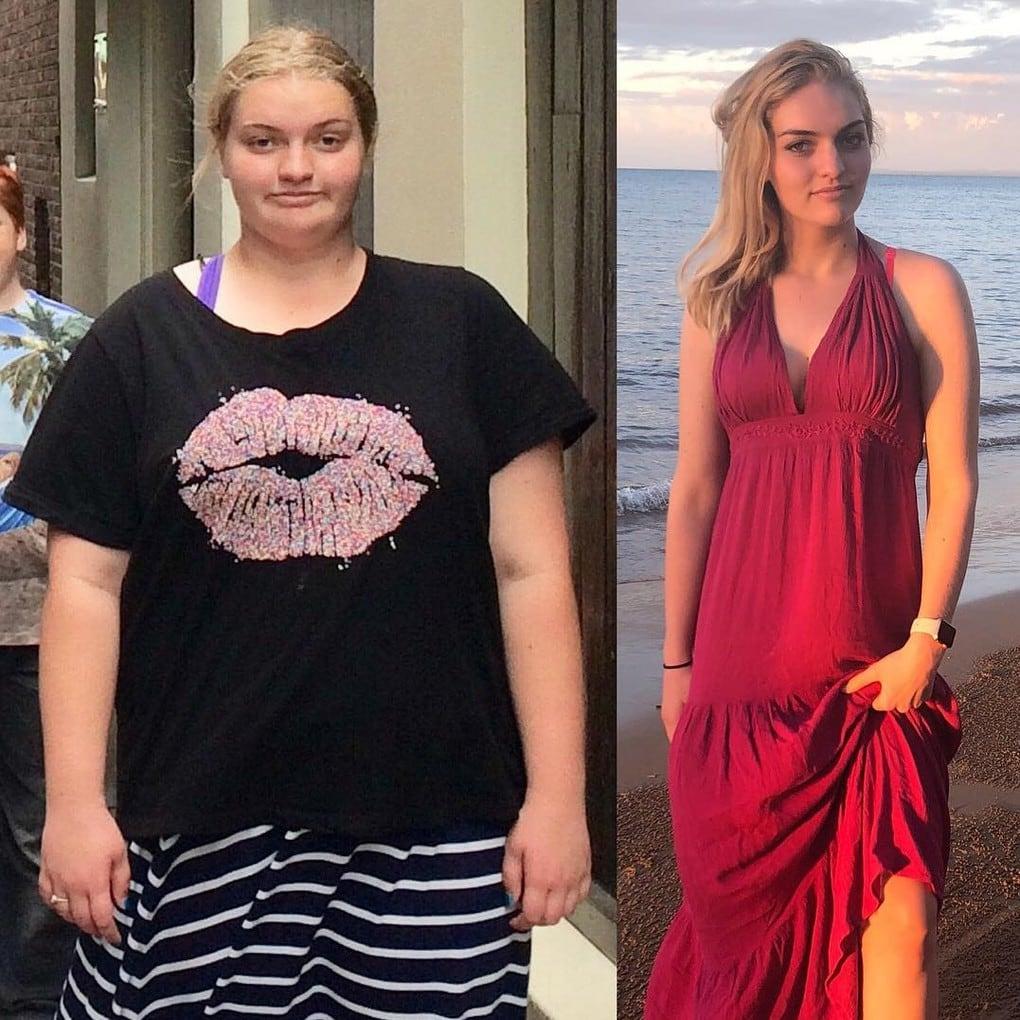 Этой юной леди из Австралии удалось похудеть на 64 кг. Всё из-за желания надеть шикарное выпускное платье 8