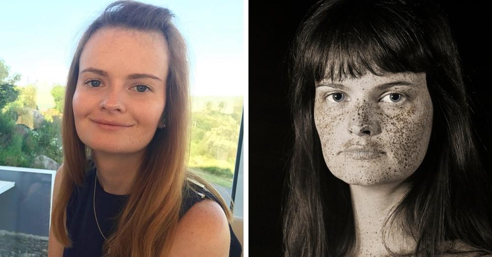 Фотограф снимает людей в ультрафиолетовом свете, показывая особенности кожи, которые не видны глазу