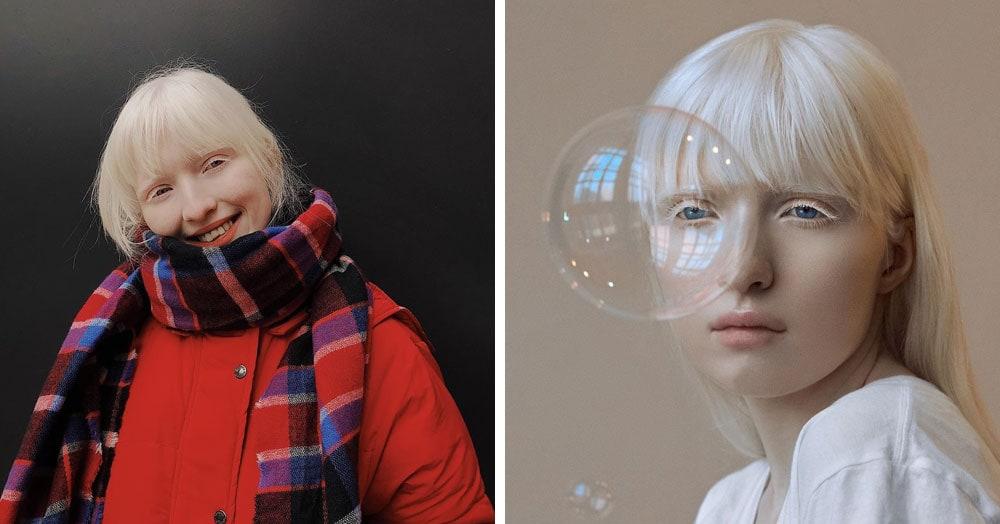 Девушку-альбиноса обижали в школе из-за странной внешности. А она выросла и покорила мировые подиумы