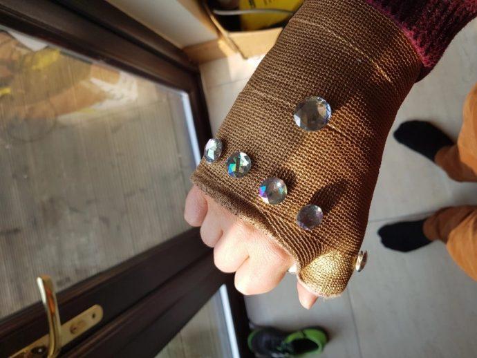 virou thanos 02 690x518 - Мужчине наложили гипс, а он превратил его в перчатку бесконечности. Да такую, что и Танос позавидует