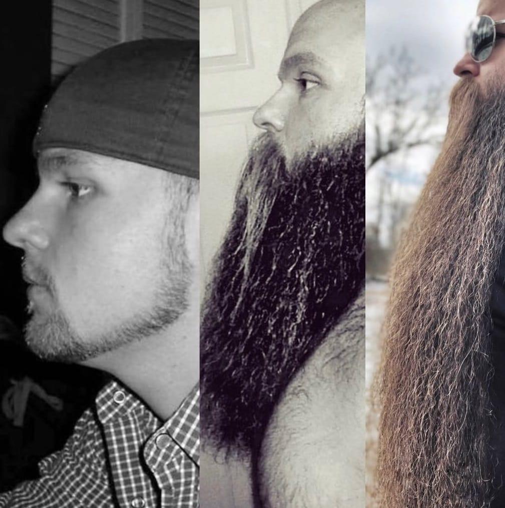 52944444 580214715787735 4140484809020676383 n 1 - Американец хотел бороду, чтобы быть пиратом. Но переборщил, и теперь у него Бородища с большой буквы
