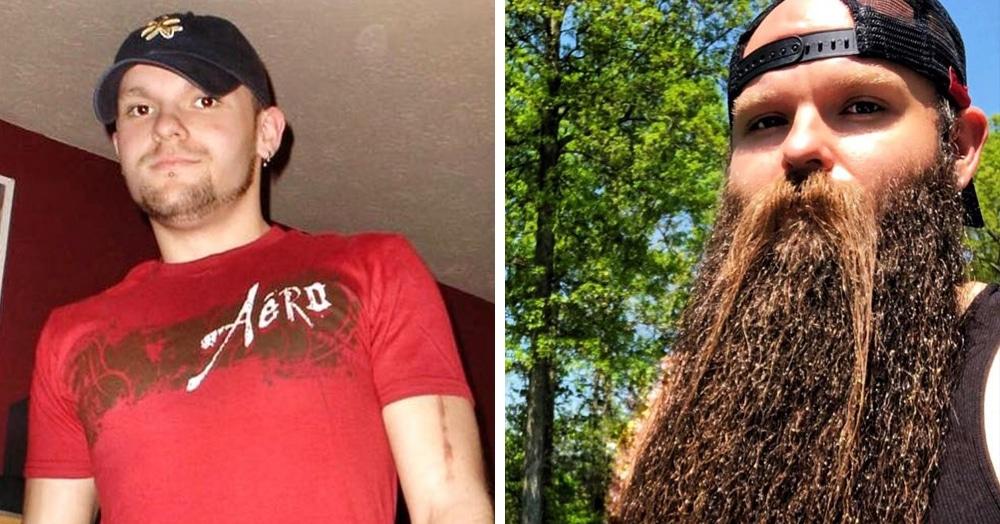 Американец хотел бороду, чтобы быть пиратом. Но переборщил, и теперь у него Бородища с большой буквы