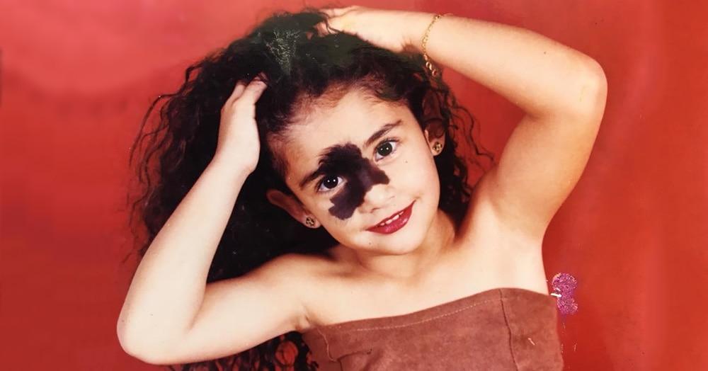 Бразильянку дразнили из-за родимого пятна, но теперь она модель и рушит стандарты красоты