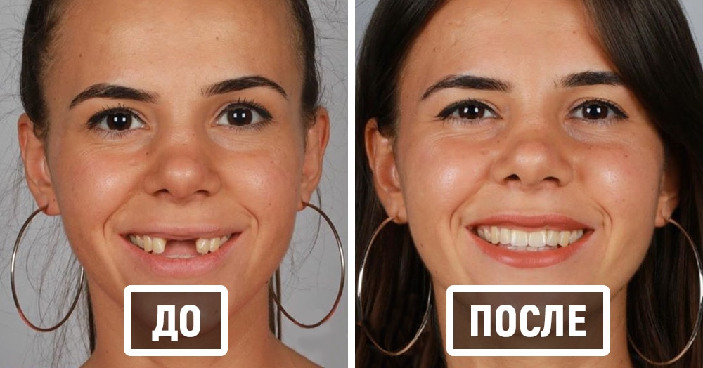 20 фотографий работ стоматолога, который даёт людям ещё одну причину улыбнуться