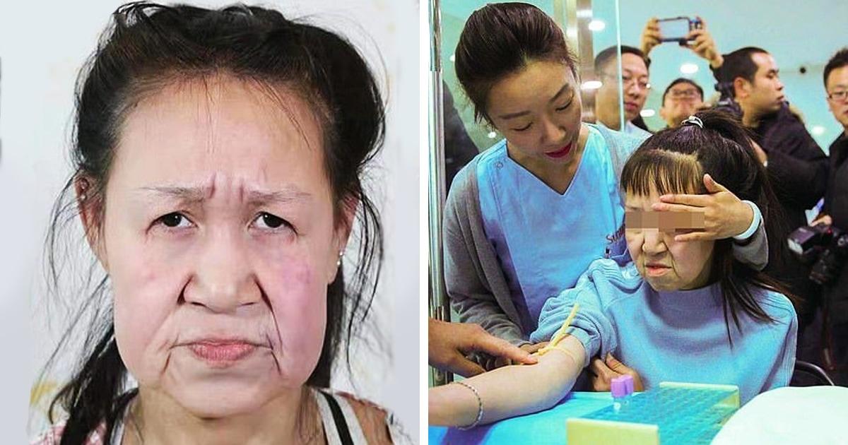 15-летнюю китаянку в школе путали с родителями детей, ведь выглядела она как бабуля. Но операция всё изменила