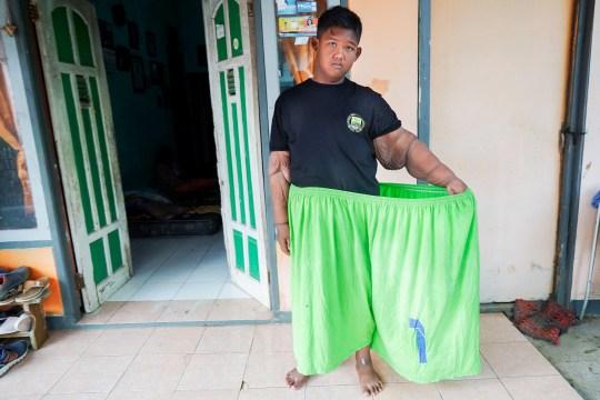 Самый толстый мальчик удивил всех своими результатами: как он сегодня выглядит