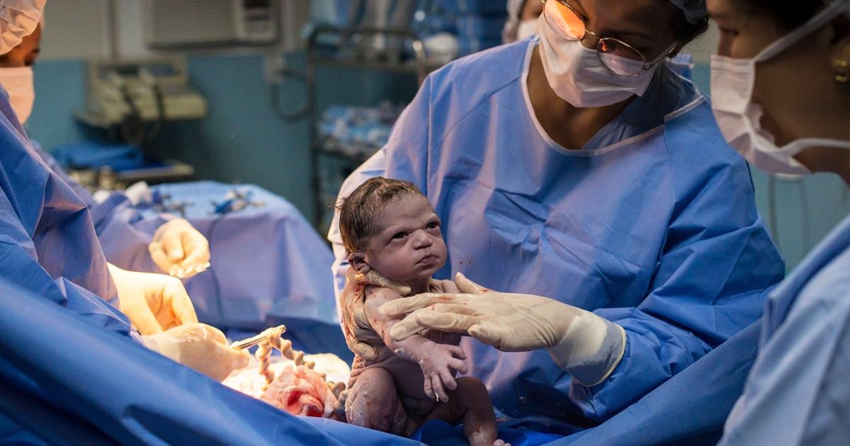Фотограф снимал рождение девочки и поймал идеальный кадр — девочка родилась настолько суровой, что стала мемом