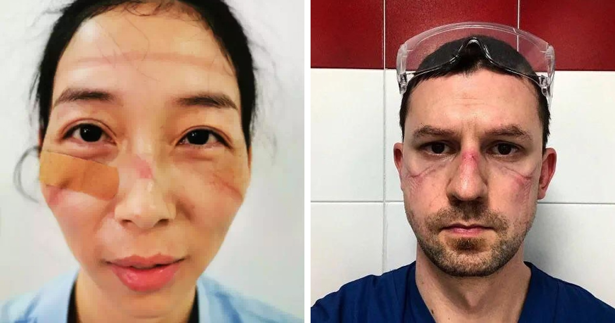 Врачи показали, как выглядят их лица после смен в больницах, где они помогают пациентам с коронавирусом