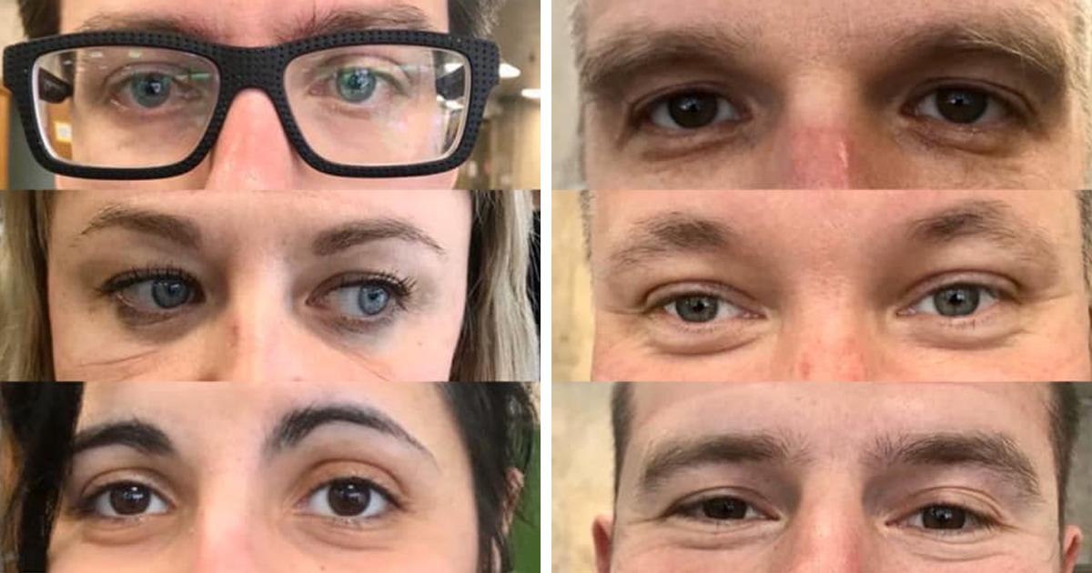Московские медики показали, как выглядит их глаза после ночной смены. И это ещё одна мотивация сидеть дома
