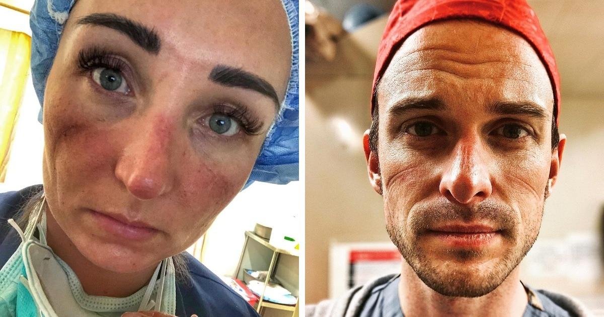 17 фотографий, которые показывают, какие следы оставляет на лицах медработников борьба с коронавирусом