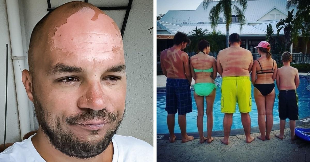 17 фотографий людей, которые не воспринимали солнце всерьёз — и оно их за это как следует наказало