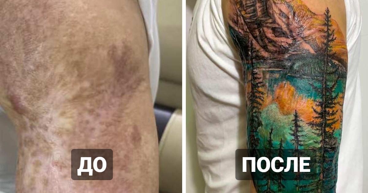 20 татуировок поверх шрамов и ожогов, которые помогли людям превратить их изъяны в изюминку