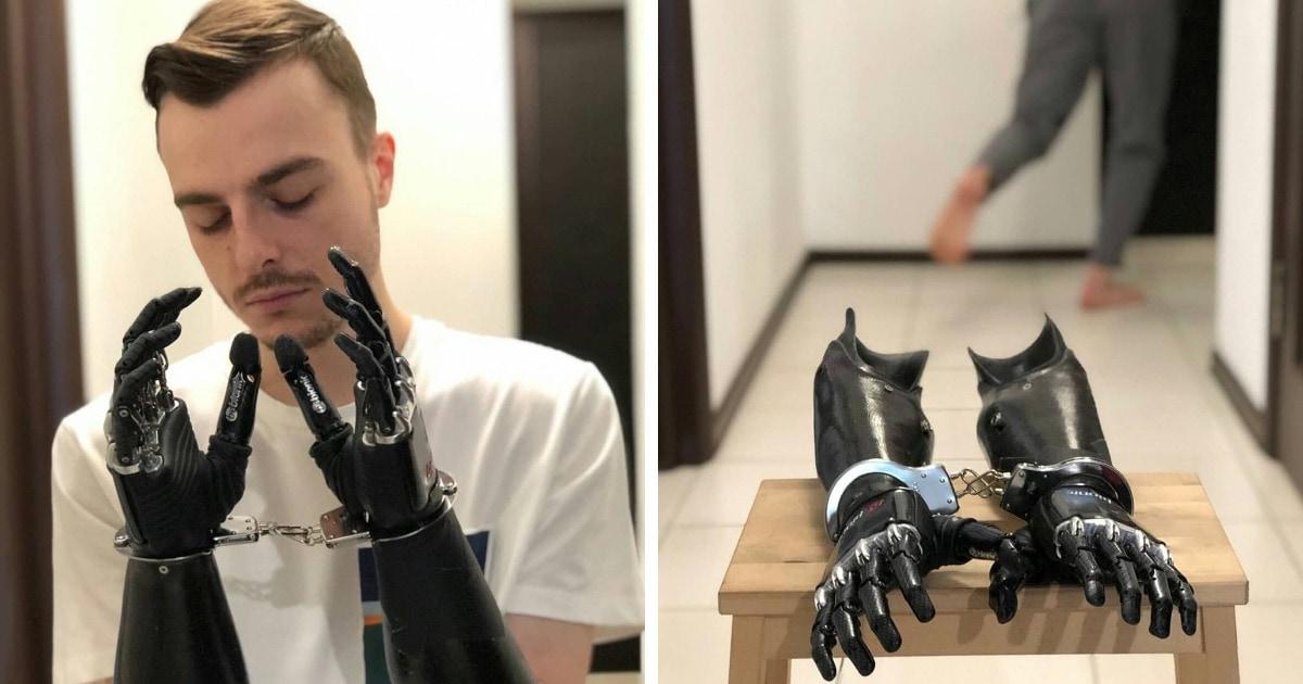 Парень с протезами вместо рук покоряет людей своим чувством юмора. И его уже прозвали королём самоиронии!