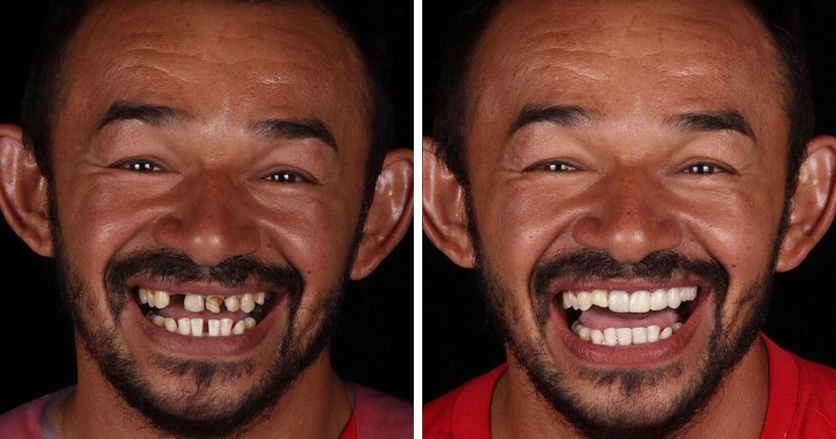 Стоматолог из Бразилии бесплатно лечит зубы всем нуждающимся, и это уход не только за зубами, но и за людьми