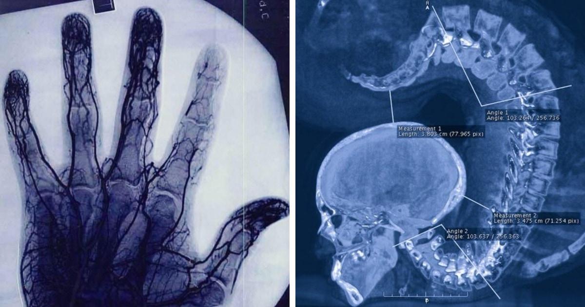 16 случаев, когда рентгеновские снимки показали людям тайны, которые были скрыты от их глаз
