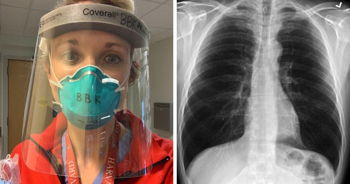 Врач показала лёгкие больного COVID-19 и показала, насколько они хуже лёгких здорового человека и курильщика