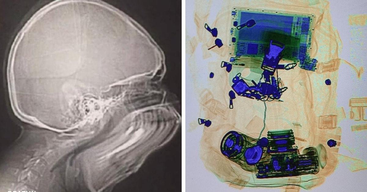 15 случаев, когда рентгеновские снимки показывали, что интересного можно увидеть внутри привычных вещей