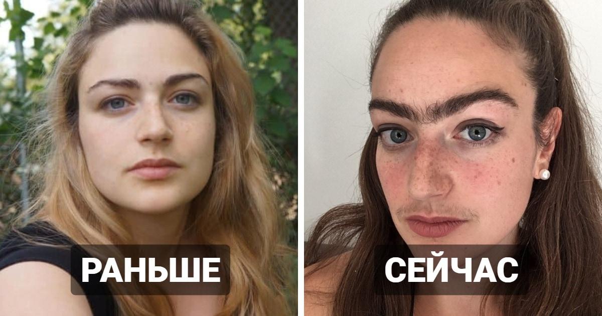 Девушка перестала удалять волосы на лице. Спустя год она рассказала, как это изменило её жизнь