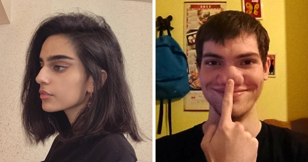 17 вдохновляющих случаев, когда люди поняли, что их необычные носы — это изюминки, а не проклятье