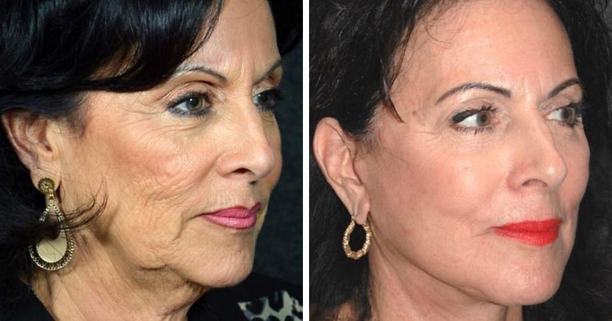 16 случаев, когда поход к врачу помогал людям радикально поменять внешность и полюбить себя