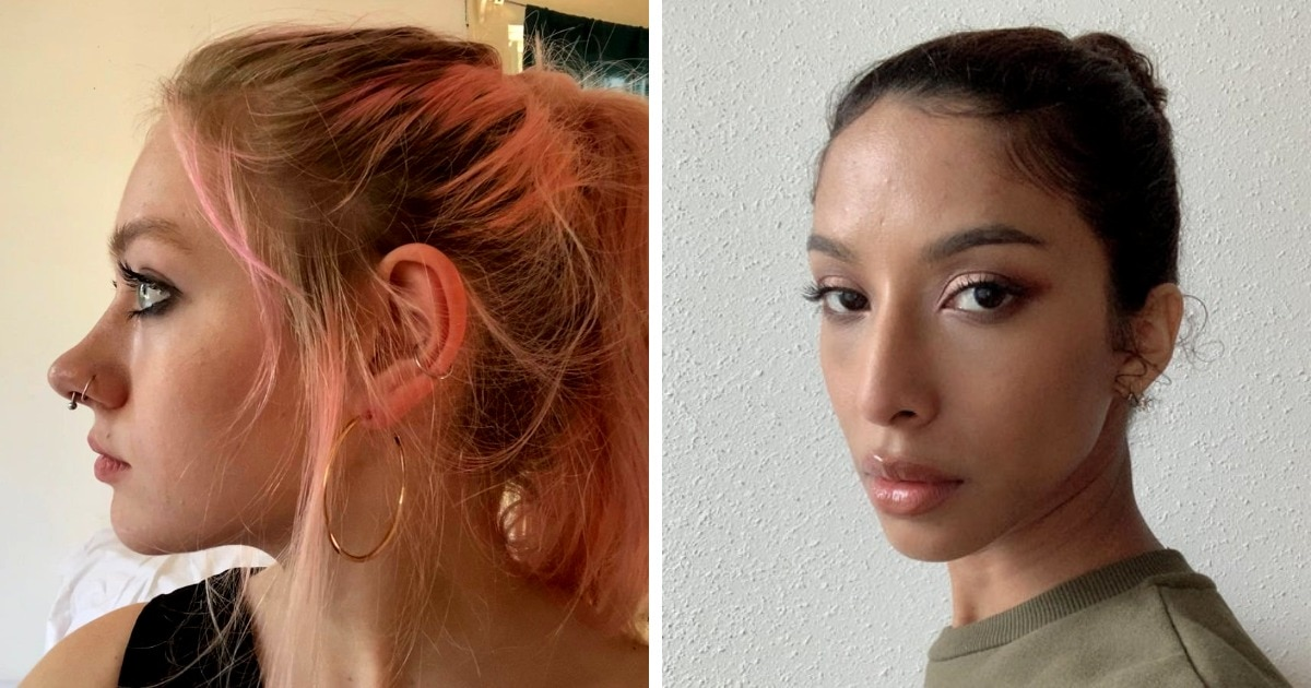 17 случаев, когда люди сначала не любили свои нестандартные носы, а потом поняли всю их красоту